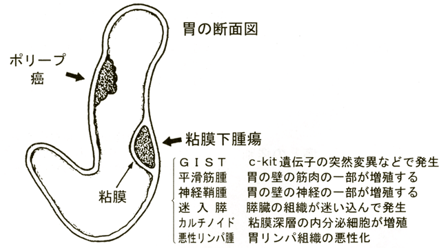 胃の粘膜下腫瘍とは
